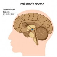 Parkinson's Disease and Therapy